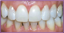 Teeth after Teeth whitening