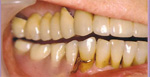 Teeth after Dentures