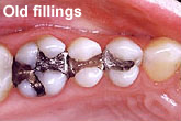 Teeth before filling