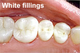 Teeth after filling