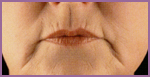 Lips before restylane treatment