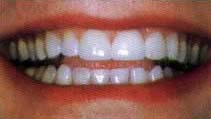 Teeth after crowna