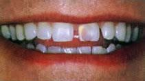 Teeth before crown